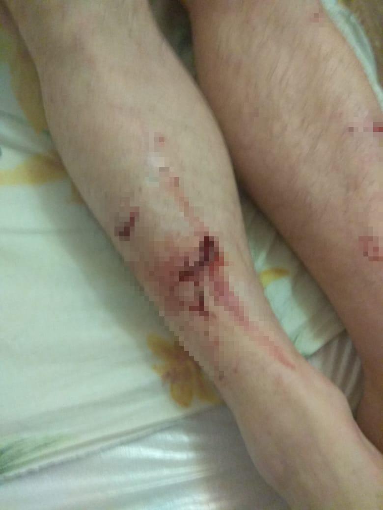 укус раны нападение собак